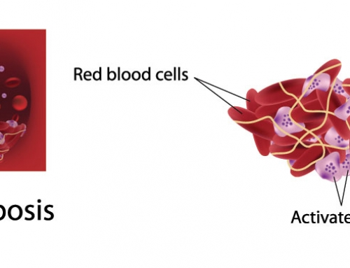 What are the causes of Thrombophilia?